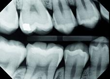 IO X-ray-10044